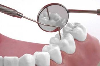 Zähne untersuchen lassen
